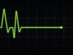EKG_Flatline